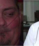 Dentista que dejó a paciente sin dientes da su versión