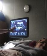 Clínica de ultrasonido 3D entrega la misma foto a más de una docena de embarazadas