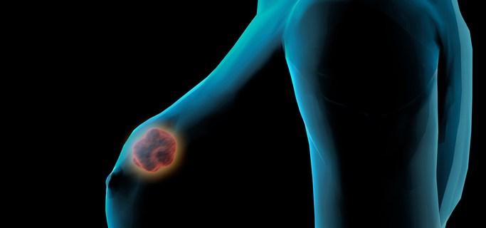 Estos son los signos que pueden indicar cáncer de mama