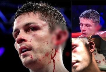 VIDEO: Dramática pelea de box detenida pues luchador casi pierde oreja