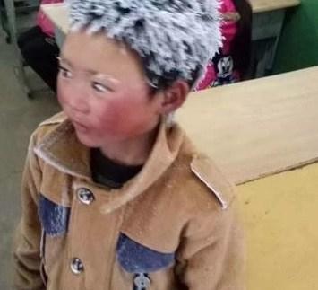 Niño que tenía el cabello congelado obtiene $330,000 en donaciones