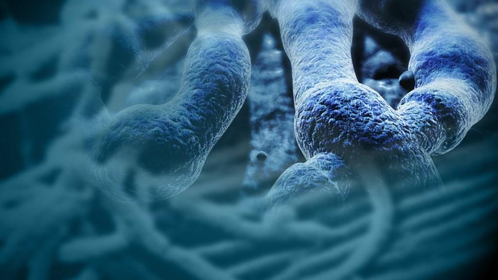 Posible caso de Ebola