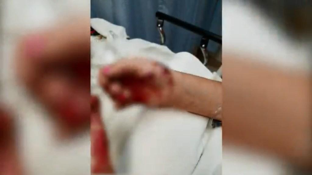 niña de 13 años herida por bomba