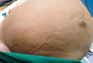 Le extirparon un tumor gigante de 61 libras que crecía en su vientre