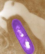 4 hospitalizados por comer productos de cerdo infectados con Listeria