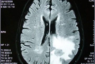 Joven cantó mientras los médicos le extirpaban un tumor cerebral
