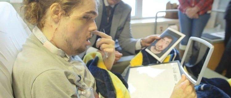 Paciente de trasplante de cara revela su nuevo aspecto al mundo