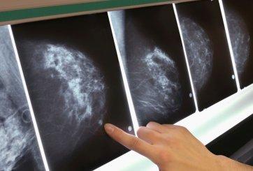 Exceso de grasa corporal duplica riesgo de cáncer de mama en mujeres