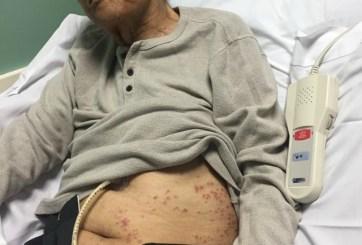 veterano atacado por hormigas