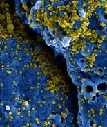 Alerta: identifican segundo caso de coronavirus en esta ciudad de EE.UU.
