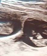 Se sometieron a tratamiento de fertilidad y ahora tendrán quintillizos