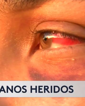 """VIDEO: """"Me pegaron en la cara, ojo y mi cabeza"""" dice joven hispano"""