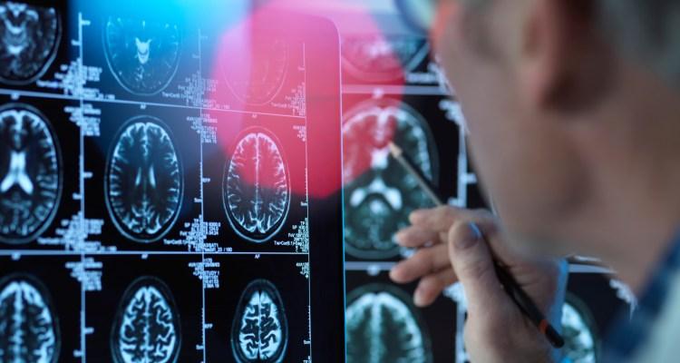 Personas con Covid-19 son más propensas a enfermedades mentales