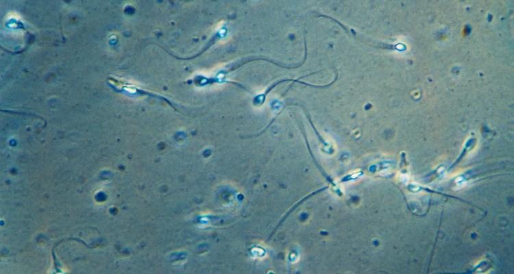 La pandemia está provocando una escasez de donadores de esperma en EE.UU.