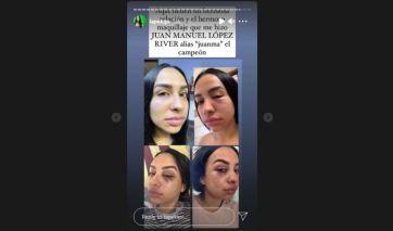 La joven acompañó sus declaraciones con unas fotos en las que aparece con golpes en sus ojos producto de alegadas golpizas por parte del púgil. Captura/lapekipr
